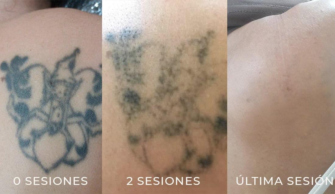 Proceso de eliminación de tatuajes en Pins&Needles Girona